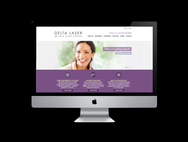 Delta-laser-website